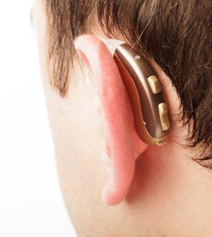 implante-coclear-GRANDE